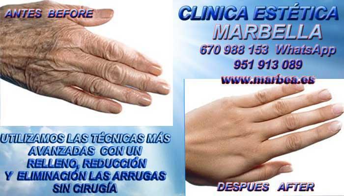 corrección las arrugas de las manos en MARBELLA En la CLINICA ESTÉTICA MARBELLA disponemos de los mejores profesionales en medicina estética que te podrán asesorar cual es la mejor opción para tratar tu problemas