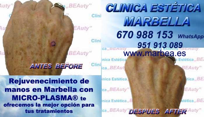 SŁOWO KLUCZOWE Manchas pigmentarias, Tratamiento de manchas y lesiones pigmentadasen Tratamiento para manchas facialesen. Eliminar lesiones pigmentadasen, Quitar lesiones pigmentadasen Marbella y Algeciras