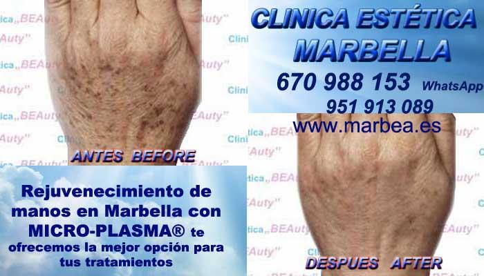 Rejuvenecimiento de manos en Marbella En la CLINICA ESTÉTICA MARBELLA disponemos de los mejores profesionales en medicina estética que te podrán asesorar cual es la mejor opción para tratar tu problemas