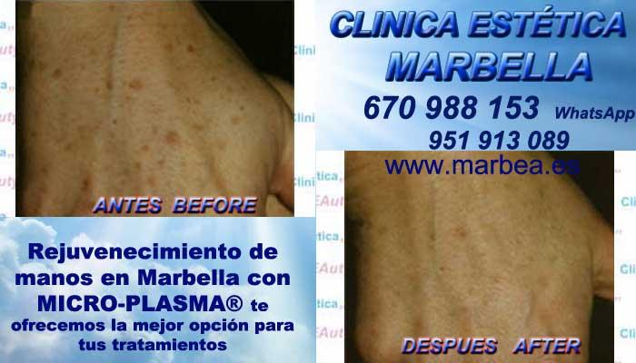 Eliminación manchas de las manos en Marbella