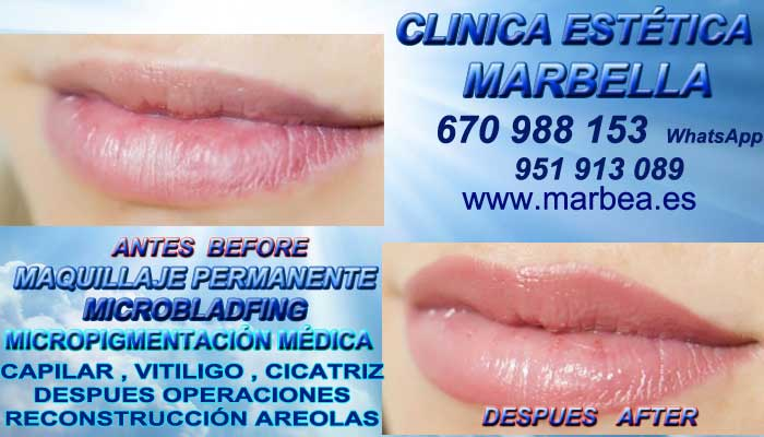 MAQUILLAJE PERMANENTE LABIOS MARBELLA CLINICA ESTÉTICA ofrece Dermopigmentacion labios en Marbella y en Marbella
