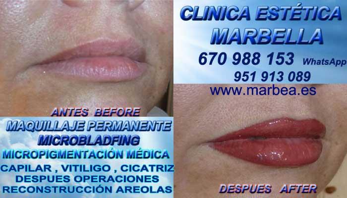 MAQUILLAJE PERMANENTE LABIOS MARBELLA CLINICA ESTÉTICA entrega Micropigmentación bocas en Marbella y en Marbella