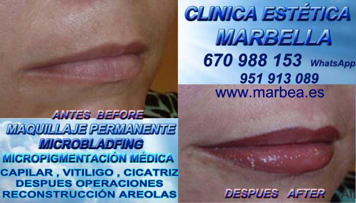 MAQUILLAJE PERMANENTE LABIOS MARBELLA CLINICA ESTÉTICA ofrece Micropigmentación labios 3D Marbella y Marbella