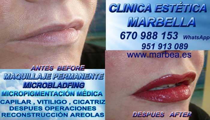 MAQUILLAJE PERMANENTE LABIOS MARBELLA CLINICA ESTÉTICA ofrenda Dermopigmentacion labios en Marbella y Marbella