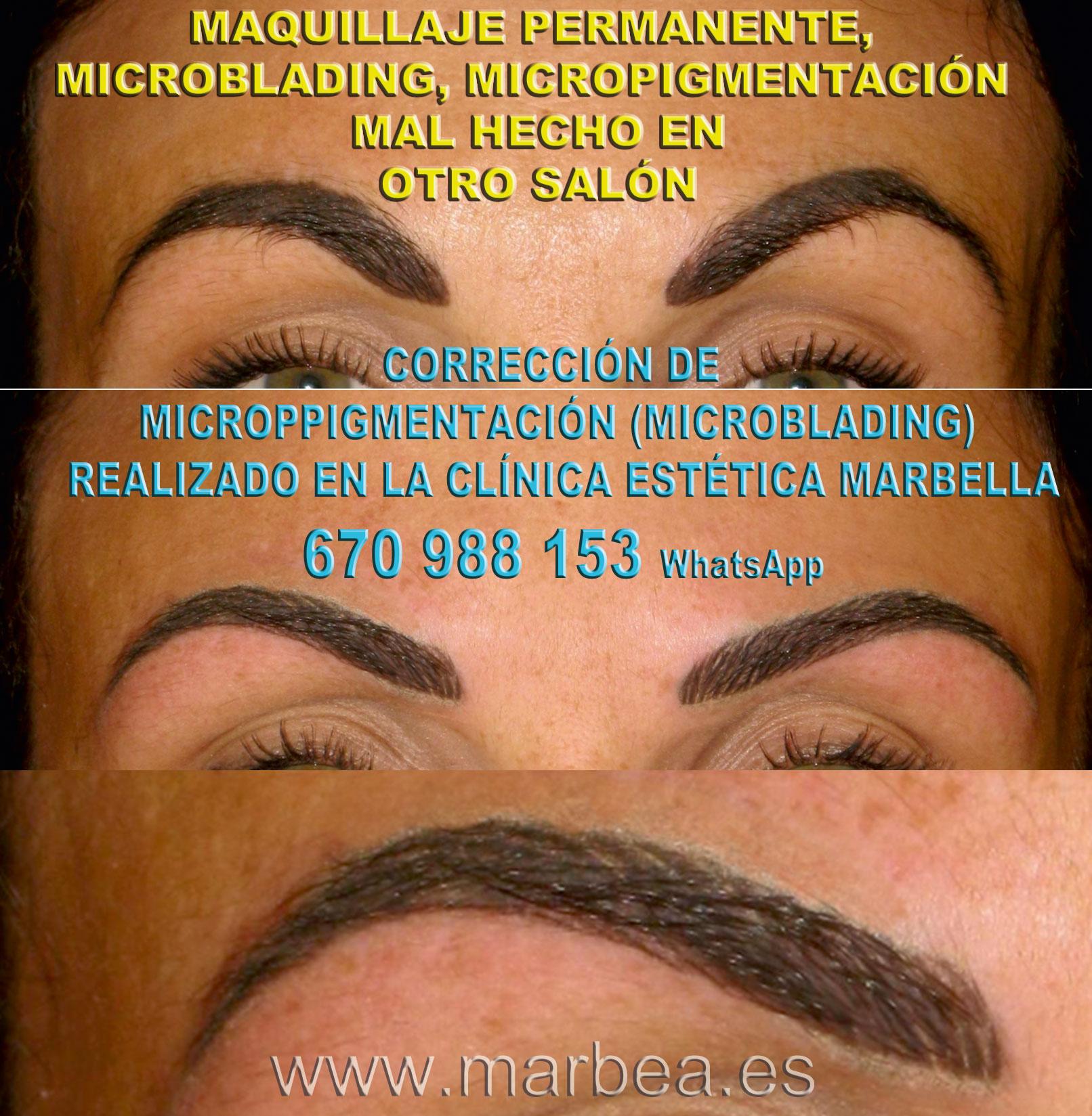 Como aclarar la micropigmentación cejas clínica estética tatuaje ofrece corrección de micropigmentación en cejas,corregir micropigmentación no deseada en Marbella or Málaga.