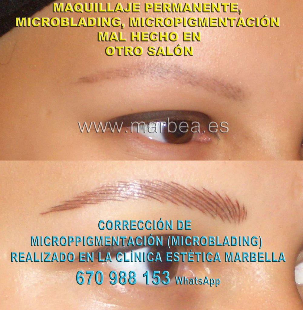 Corregir maquillaje permanente no deseada Clinica Estética Marbella siempre con el mejor equipo de MICROPIGMENTACIÓN , microblading y maquillaje permanete Marbaella