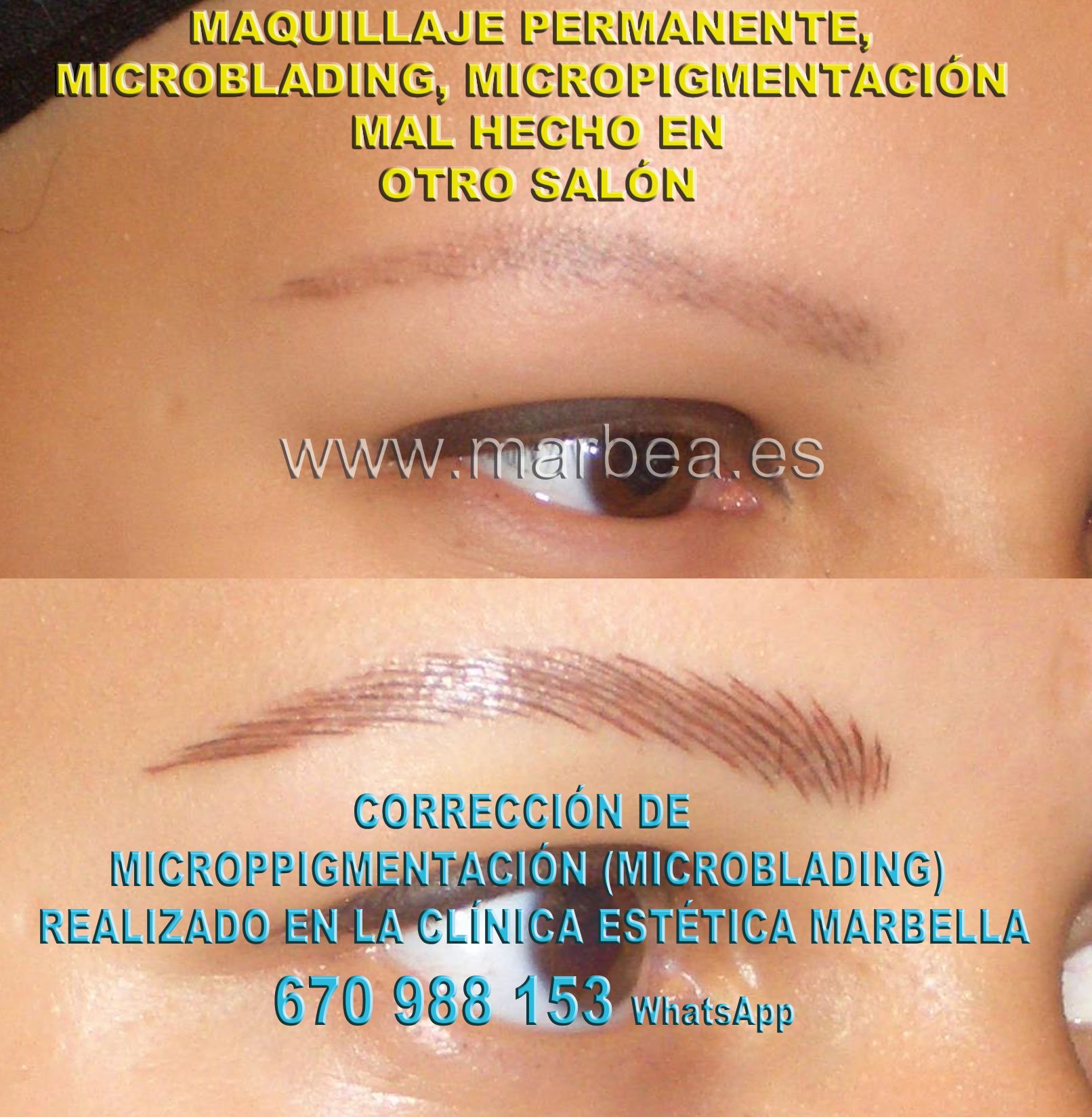 MAQUILLAJE PERMANENTE CEJAS MAL HECHO clínica estética micropigmentación propone corrección de cejas mal tatuadas,reparamos microppigmentacion mal hechos
