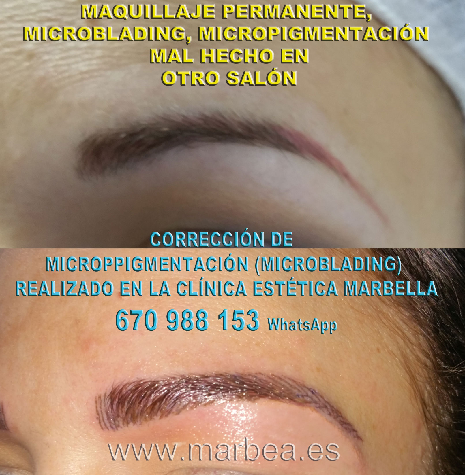 MAQUILLAJE PERMANENTE CEJAS MAL HECHO clínica estética tatuaje propone micropigmentacion correctiva de cejas,corregir micropigmentación mal hecha