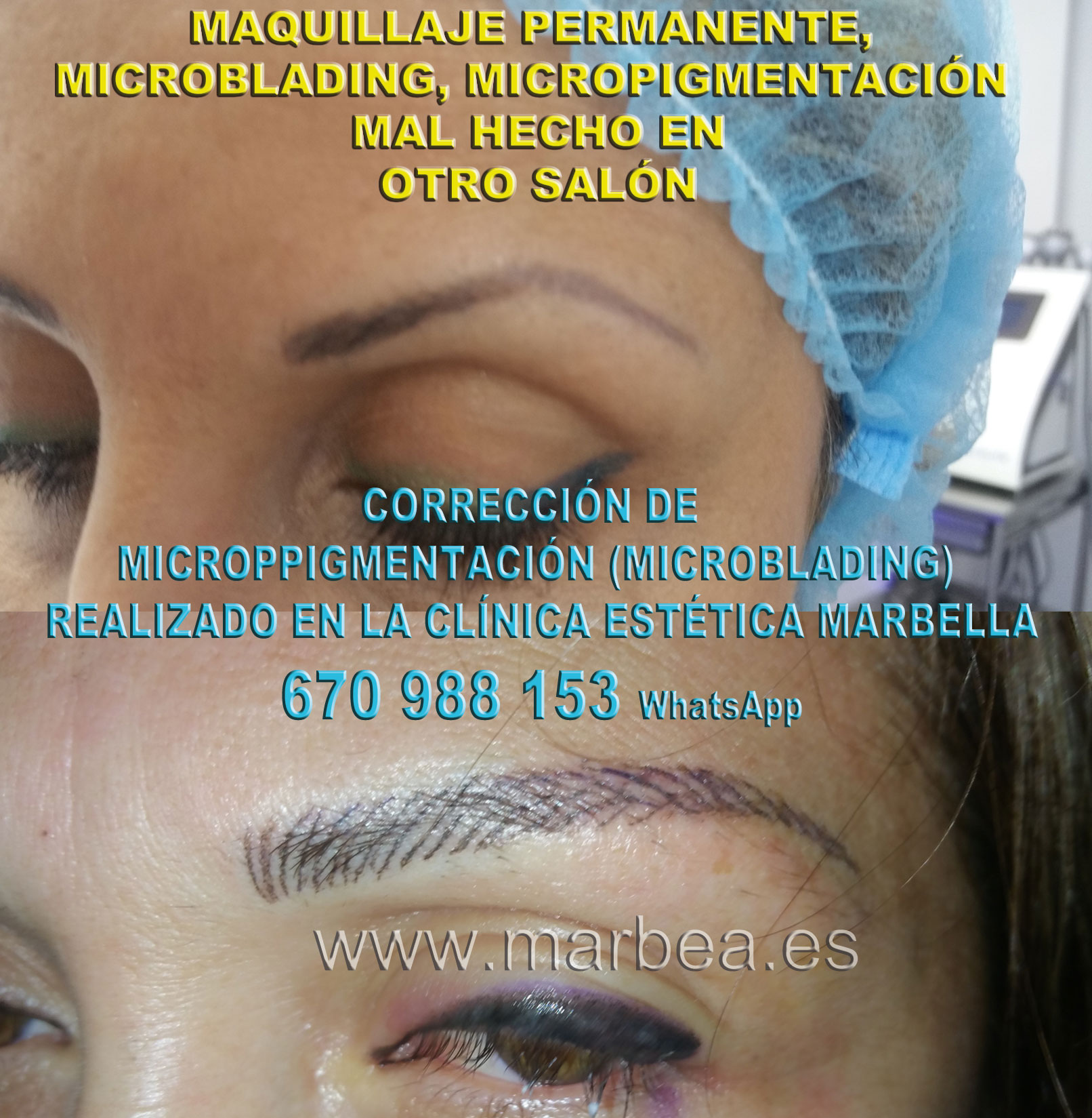 ELIMINAR TATUAJE CEJAS clínica estética micropigmentación propone micropigmentacion correctiva de cejas,corregir micropigmentación mal hecha