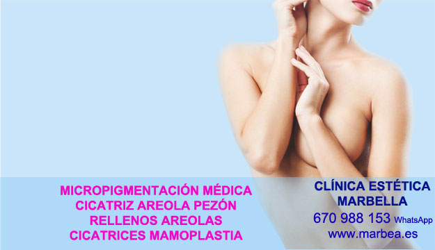 MICROPIGMENTACIÓN PARA CICATRICES Tratamiento cicatrices post reduccion mamas