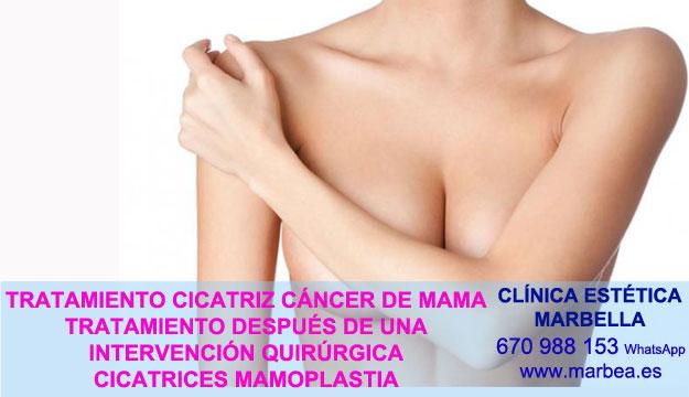 CICATRICES MAMARIA clínica estética maquillaje semipermanente ofrece camuflaje cicatrices posteriormente de reduccion mamaria