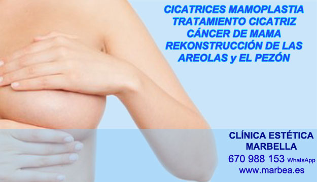 MICROPIGMENTACIÓN DE LA AREOLA clínica estética maquillaje permanete ofrece tratamiento cicatrices posteriormente de reduccion de mamas