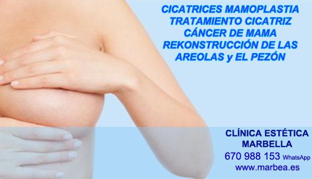 CICATRICES MAMARIA clínica estética tatuaje propone camuflaje cicatrices luego de reduccion pechos