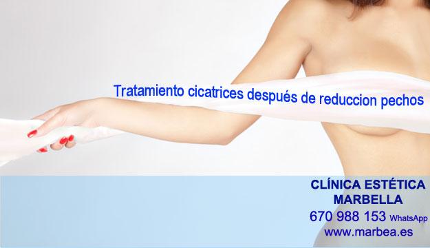 MICROPIGMENTACIÓN DE LA AREOLA clínica estética delineados ofrece tratamiento cicatrices posteriormente de reduccion de senos