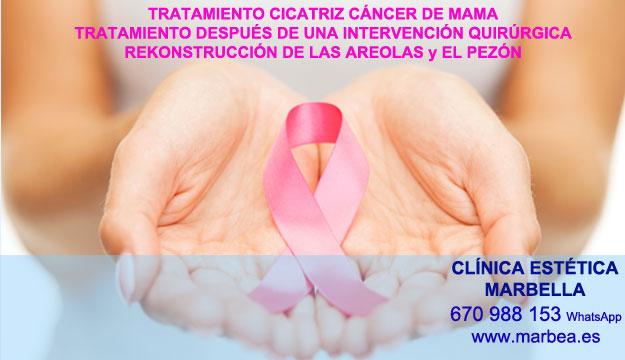 MICROPIGMENTACIÓN DE LA AREOLA clínica estética tatuaje ofrece tratamiento cicatrices luego de reduccion senos