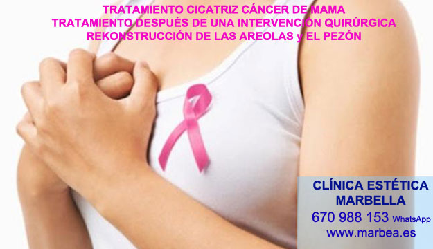 MICROPIGMENTACIÓN DE LA AREOLA clínica estética tatuaje ofrece tratamiento cicatrices post reduccion senos