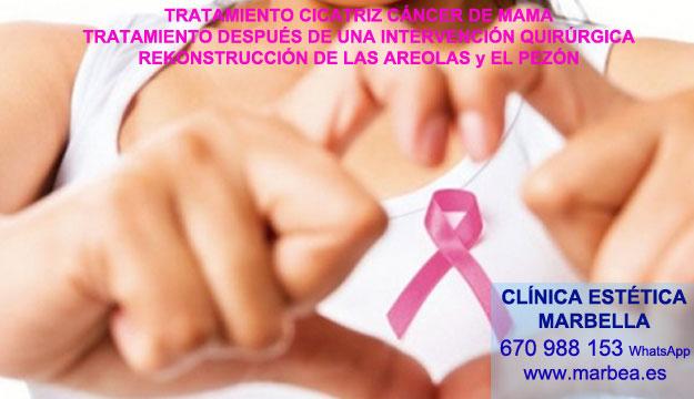 Micropigmentación de la areola Tratamiento cicatrices después de reduccion de mamas en Marbella o Nerja. Pigmentacion Marbella y Coin. en Microblading Marbella y en Frontera
