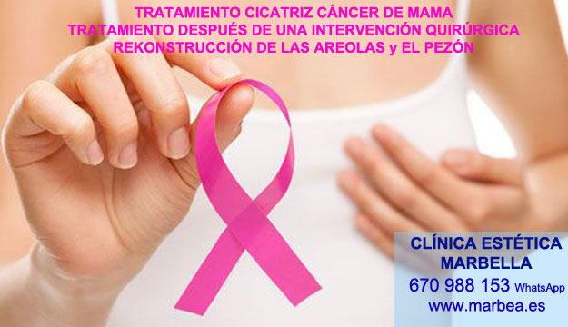 cicatrices mamoplastia Madrid. Tratamiento cicatrices post reduccion de pezón Marbella or Madrid.. Pigmentacion Marbella y Madrid.