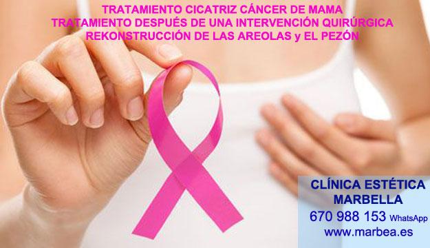 CICATRICES DESPUÉS DEL AUMENTO DE PECHO clínica estética micropigmentación ofrenda camuflaje cicatrices después de reduccion de senos