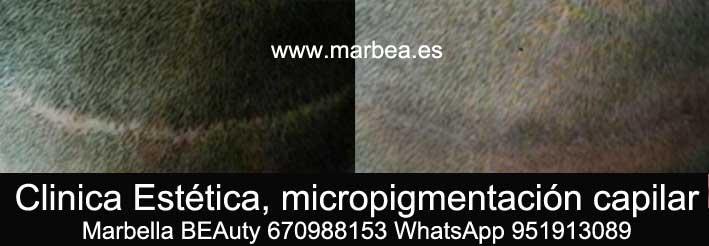 CAMUFLAJE DE LA CICATRIZ DEL TRASPLANTE DEL PELO CLINICA ESTÉTICA dermopigmentacion capilar Marbella y maquillaje permanente en marbella