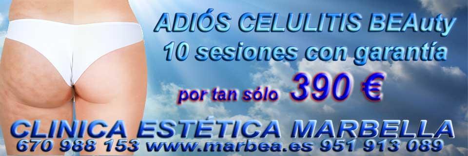 rejuvenecimiento facial Puerto Banus reducir para levantar parpados sin cirugia en Marbella or Puerto Banus