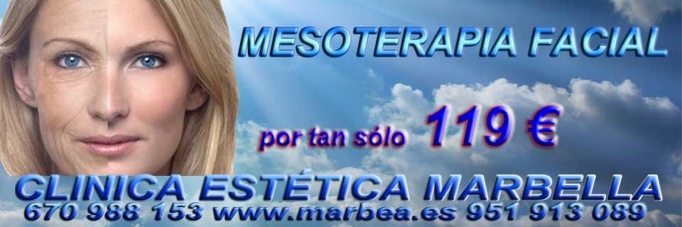 rejuvenecimiento facial Alicante tratamiento para levantar parpados sin cirugia en Marbella y Alicante