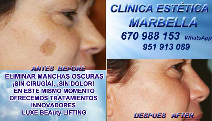 ELIMINAR MANCHAS OSCURAS la Línea Manchas pigmentarias, Tratamiento de manchas y lesiones pigmentadas en Tratamiento para manchas facialesen. Eliminar lesiones pigmentadas en, Quitar lesiones pigmentadas en en Marbella y la Línea