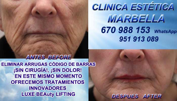 código de barras Huelva:En la CLINICA ESTÉTICA MARBELLA te ofrecemos la mayor calidad de, servicios en Marbella y Frontera