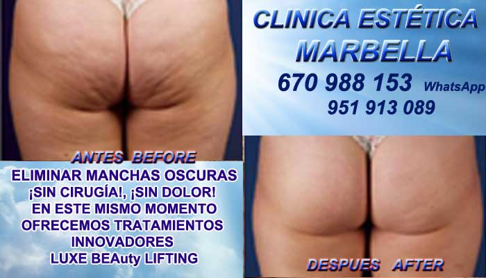 Tratamiento Para Celulitis San Pedro  :En la CLINICA ESTÉTICA MARBELLA te proponemos la alta calidad de, nuestra función en Marbella y San Pedro