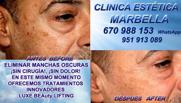 Tratamiento para manchas faciales Marbella Clínica Maquillaje Permanente Facial y Micropigmentación Médica Te ofrecemos la mayor calidad de servicios al mejor precio de servicio: Eliminar Manchas en la Piel Marbella