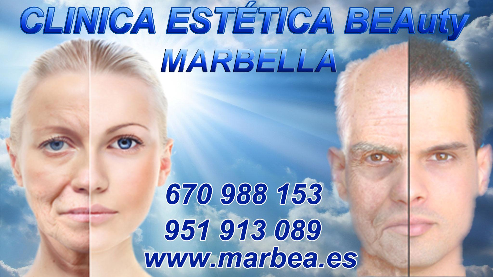 micropigmentaci capilar Marbella Clica Estica y tratamiento caida del pelo mujer Marbella