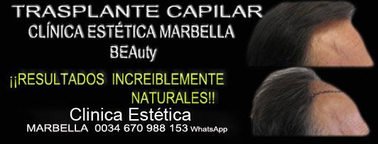 micropigmentaci capilar Marbella Clica Estica y tratamiento de la Alopecia Marbella