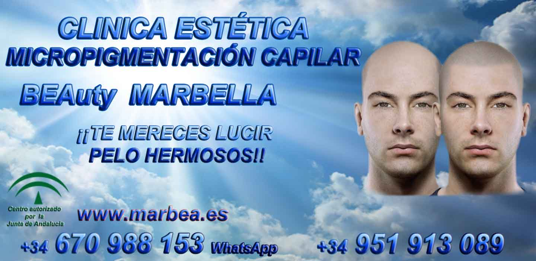 TRATAMIENTO CAIDA DEL CABELLO MUJERES Clínica Estética y tratamientos alopecia areata Marbella: Te proponemos la mayor calidad de servicios