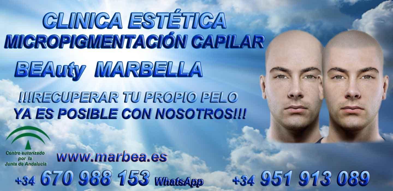 TRATAMIENTO CAIDA DEL PELO MUJER Clínica Estética y tratamiento contra la alopecia Marbella: Te proponemos la mayor calidad de nuestroservicio