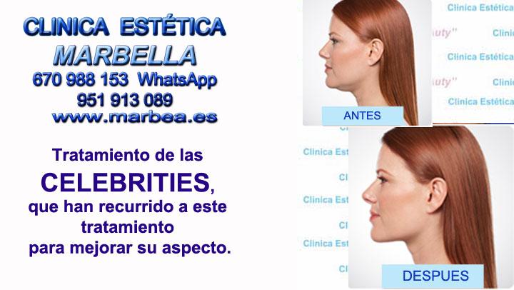 Remodelación del contorno facial Marbella Clinica Estética Marbella contamos con los últimos avances tecnológicos