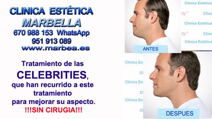 relleno de mandibula Marbella Clinica Estética Marbella contamos con los últimos avances tecnológicos