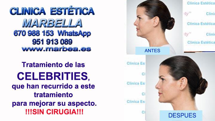 BIOPLASTIA MARBELLA Clinica Estética Marbella contamos con los últimos avances tecnológicos