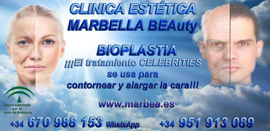 BIOPLASTIA MARBELLA Clinica Estética Marbella contamos con los últimos avances
