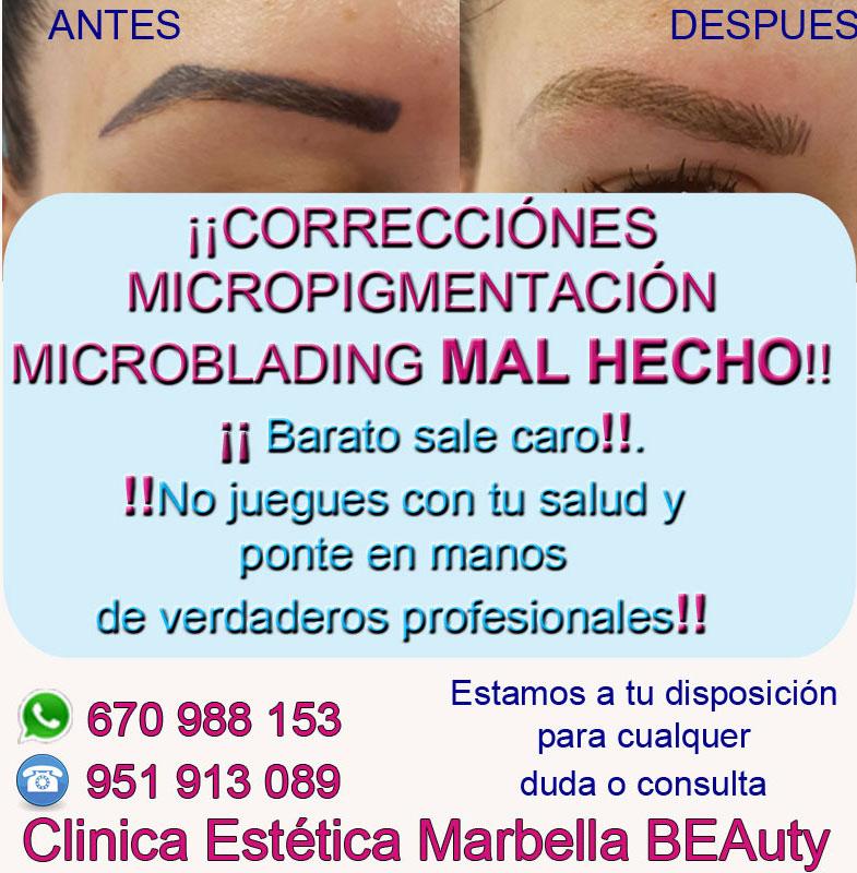 corrección de microblading en cejas Clinica Estética Marbella siempre con el mejor equipo de MICROPIGMENTACIÓN , microblading y maquillaje permanete Marbaella