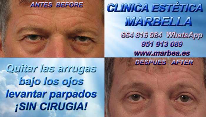 Clinica Estética Marbella, Micropigmentación Capilar en Marbella rejuvenecimiento facial sin cirugía reducción arrugas Marbella, relleno arrugas Marbella  belleza Marbella. Corrección las arrugas Marbella, eliminacion arrugas Marbella arrugas borrar Marbella. Tratamiento de arrugas Marbella, Marbella - corrección las arrugas. Liposucción sin cirugía Marbella, blefaroplastia Marbella. Aumento labios Marbella, relleno facial Marbell Eliminación ojeras Marbella. Tratamiento celulitis marbella, rejuvenecimiento facial Marbella. Estrías Marbella, rejuvenecimiento Marbella. 1B Rejuvenecimiento Facial Marbella Sin Cirugia