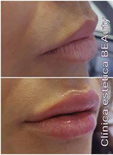 acido hialuronico labios en marbella Opiniones precio acido hialuronico, acido hialuronico en labios lipofilling labios.