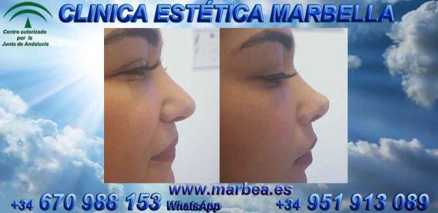 Rinoplastia sin cirugía Marbella CLINICA ESTÉTICA MARBELLA BEAuty rejuvenecimiento facial Facial rejuvenation