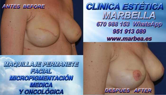 CICATRIZ DESPUES DE AUMENTO DE SENOS clínica estética delineados ofrenda tratamiento cicatrices después de reduccion pezón