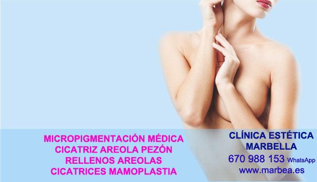 cicatrices mamoplastia de aumento Tratamiento cicatrices después de reduccion de pezón en Marbella y Granada. Maquillaje Semipermanente Marbella y en San Pedro. en Pigmentacion Marbella y en Nerja