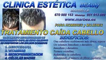 TRATAMIENTO PARA LA CALVICIE CLINICA ESTÉTICA micropigmentación capilar en Málaga or Marbella y MAQUILLAJE PERMANENTE en MARBELLA